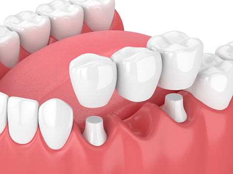 render of dental bridges at Olympia Prosthodontics & Cosmetic Dentistry