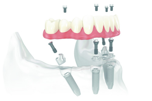 Implant Supported Dentures Can Give You a Confident Smile